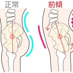 「大腿骨 骨盤 ゆがみ」の画像検索結果